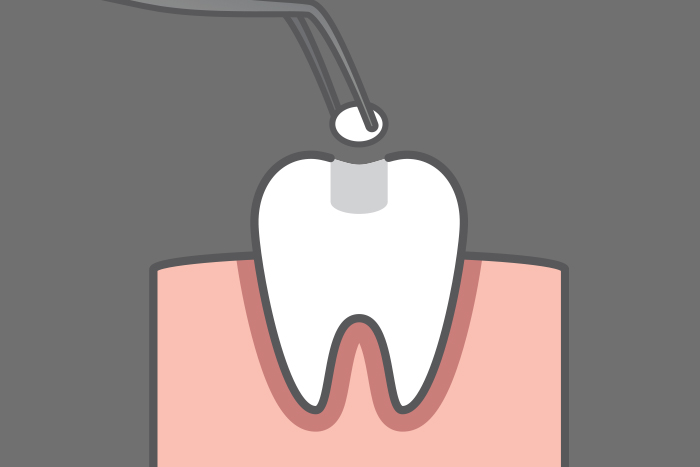 fillings-at-dentist