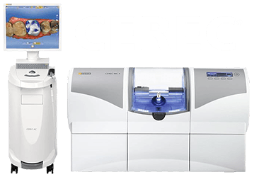 Cerec same day crowns